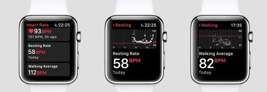 Újra életet mentett az Apple Watch